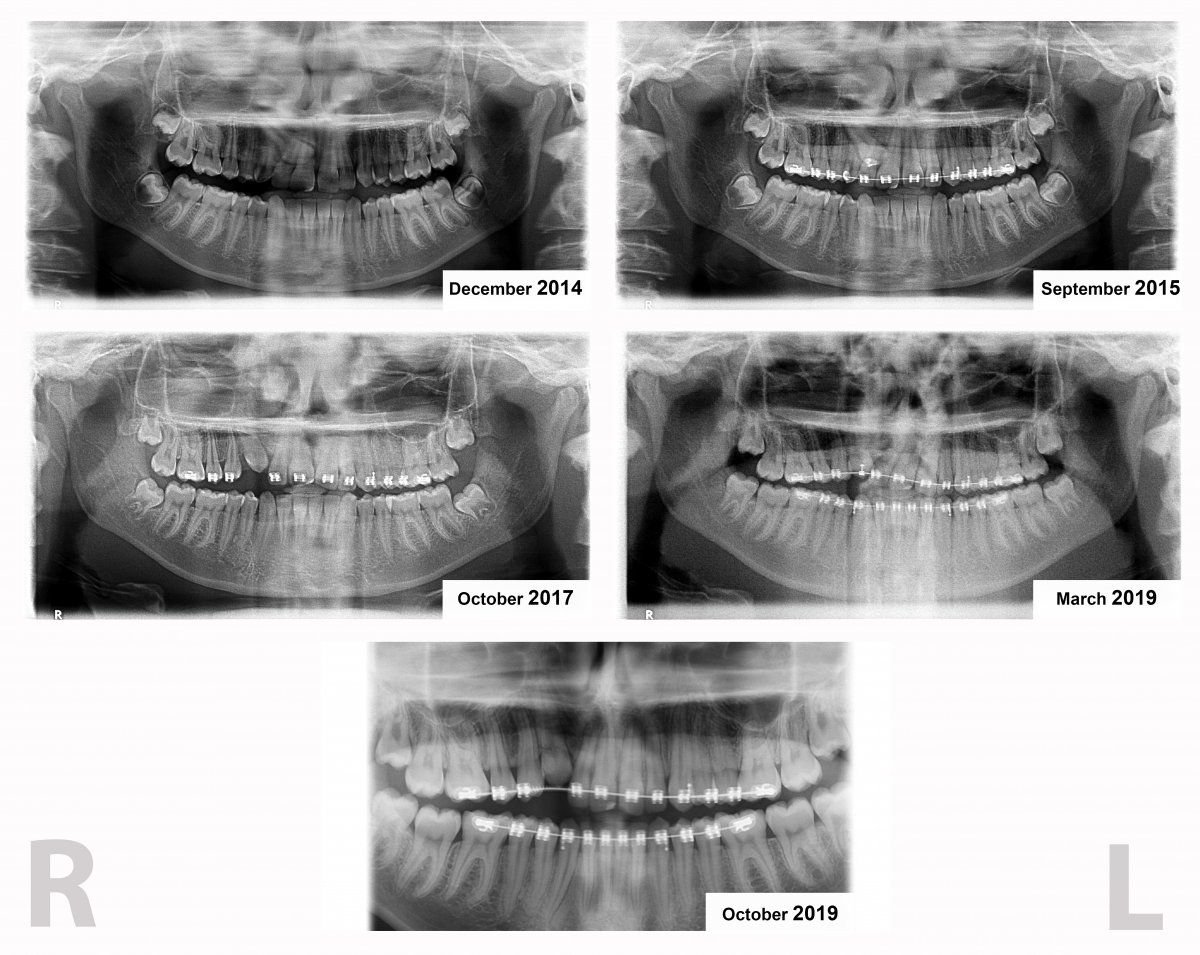 5 x rays.jpg