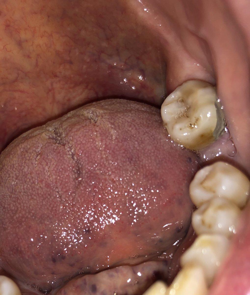 Amalgam filling No. 18 Molar.jpg