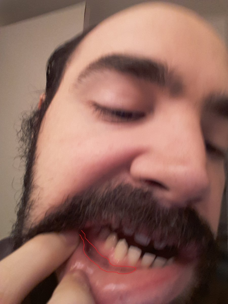 bottom gums.jpg