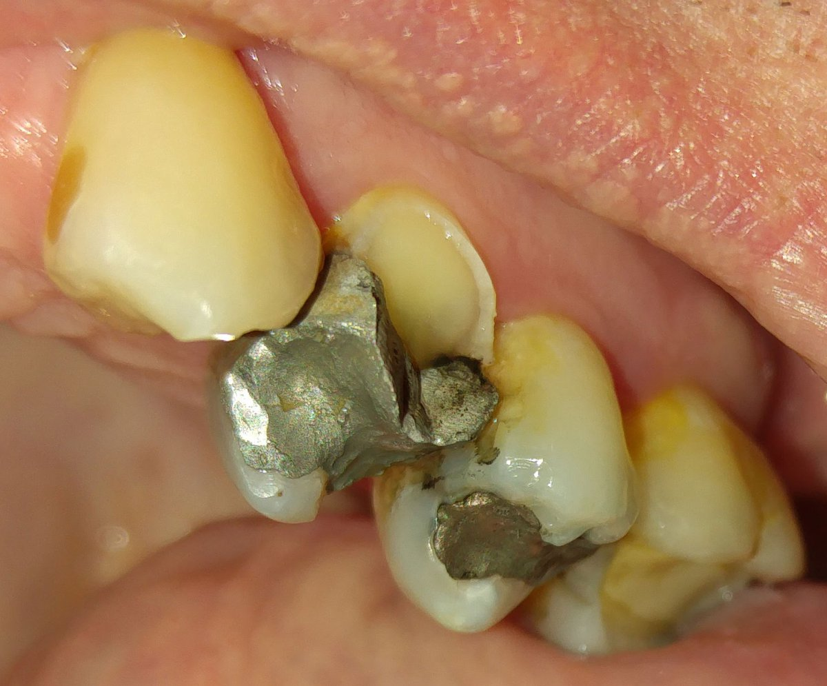 Broken-Tooth-web.jpg