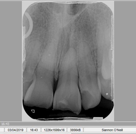 front teeth.JPG