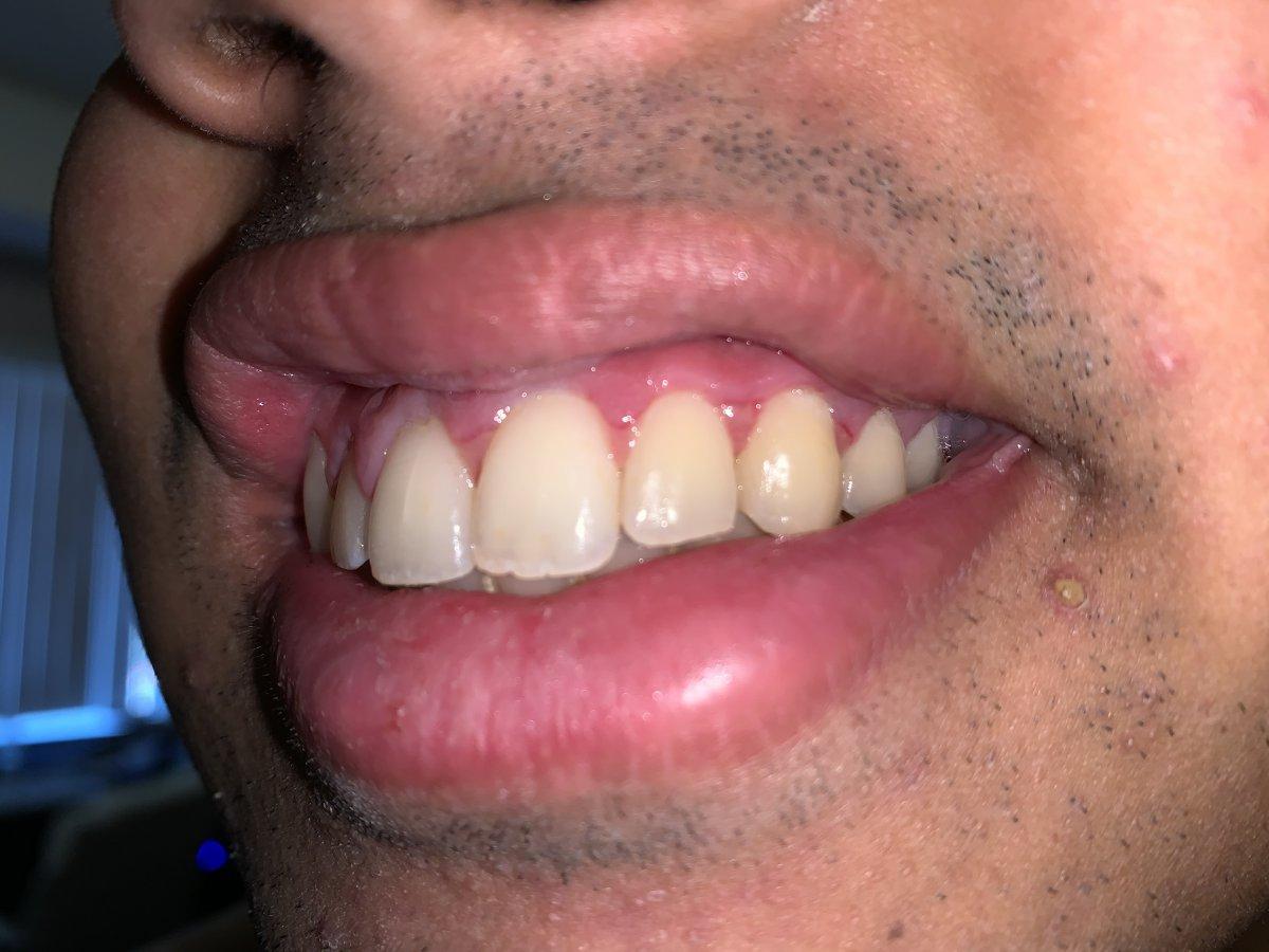 teeth 2.jpeg