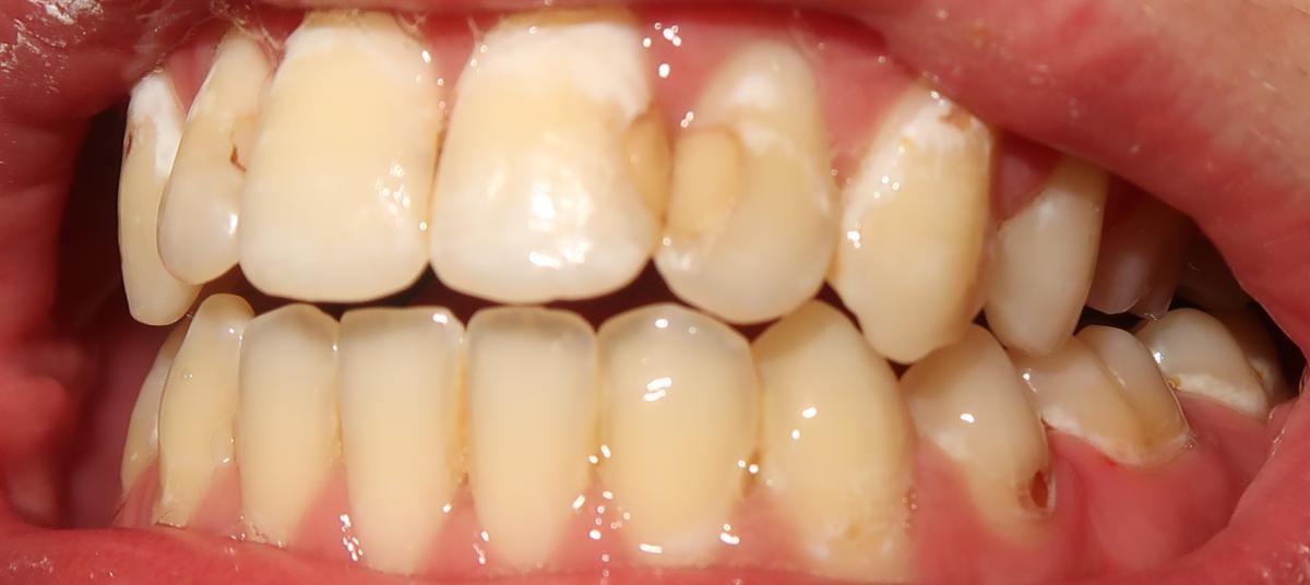 teeth3.png