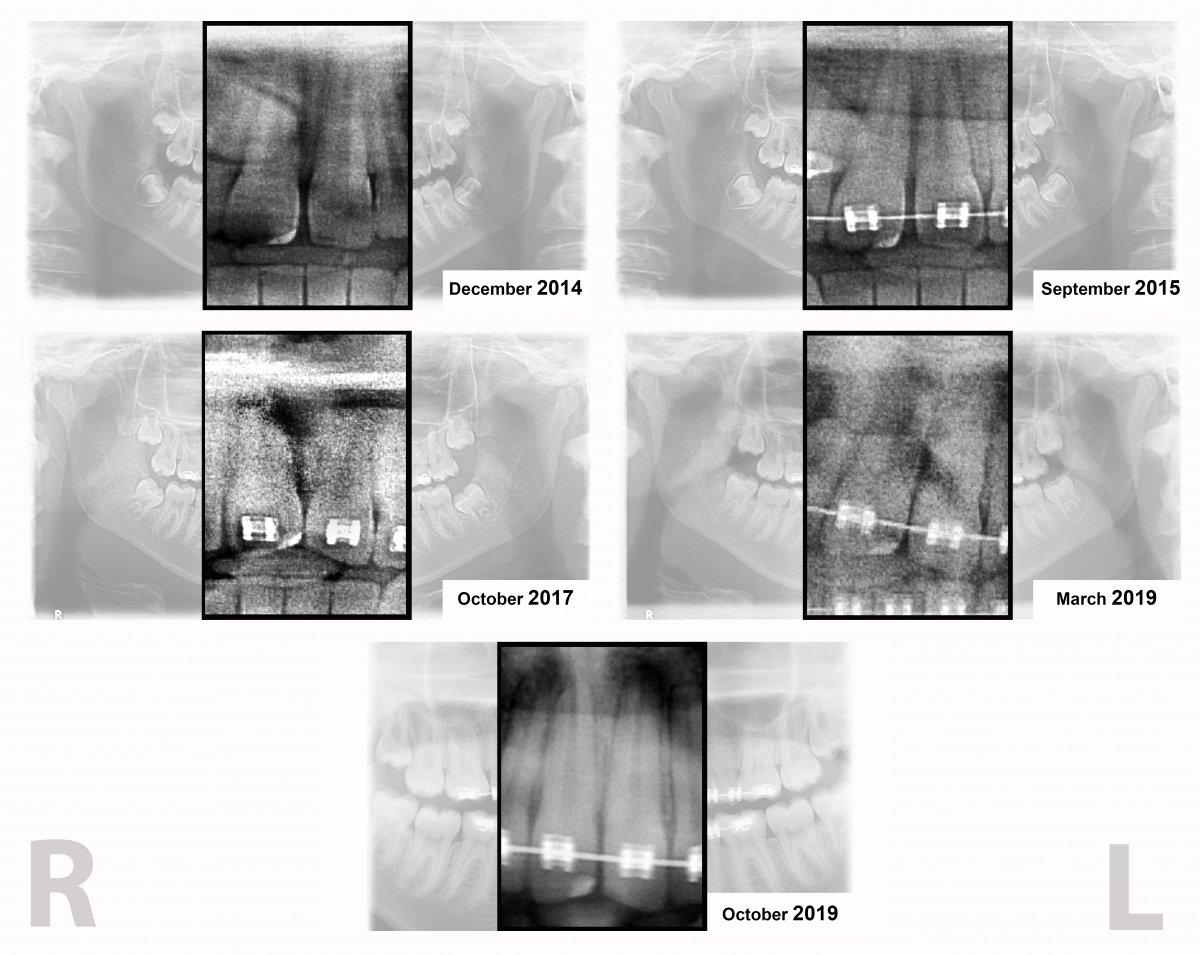 x ray close up.jpg